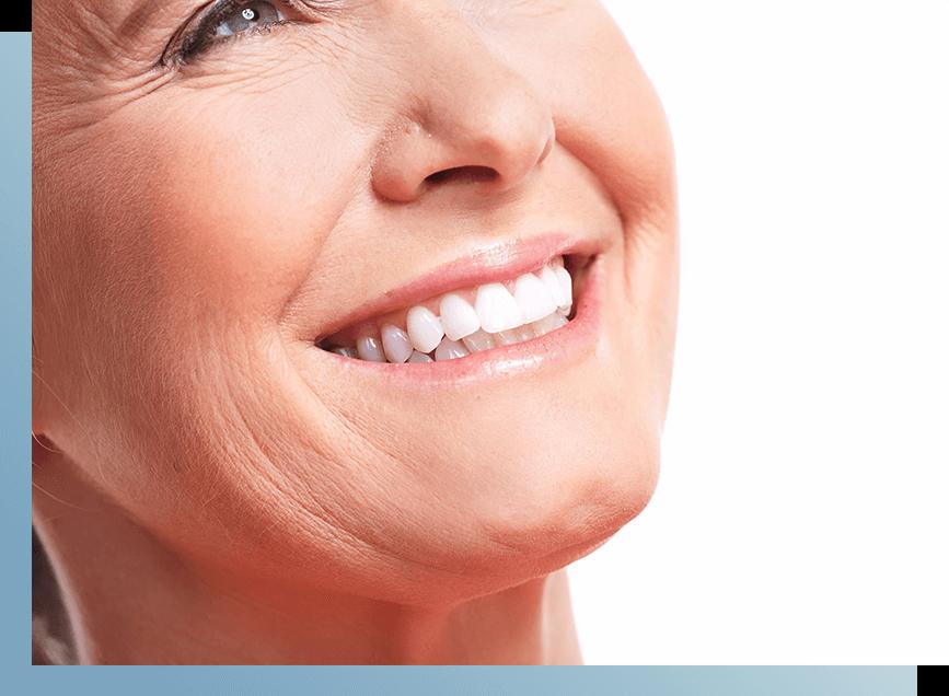 sourire prothèse dentaire